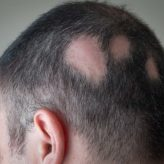 What Is Alopecia — Causes, Symptoms & Treatment?